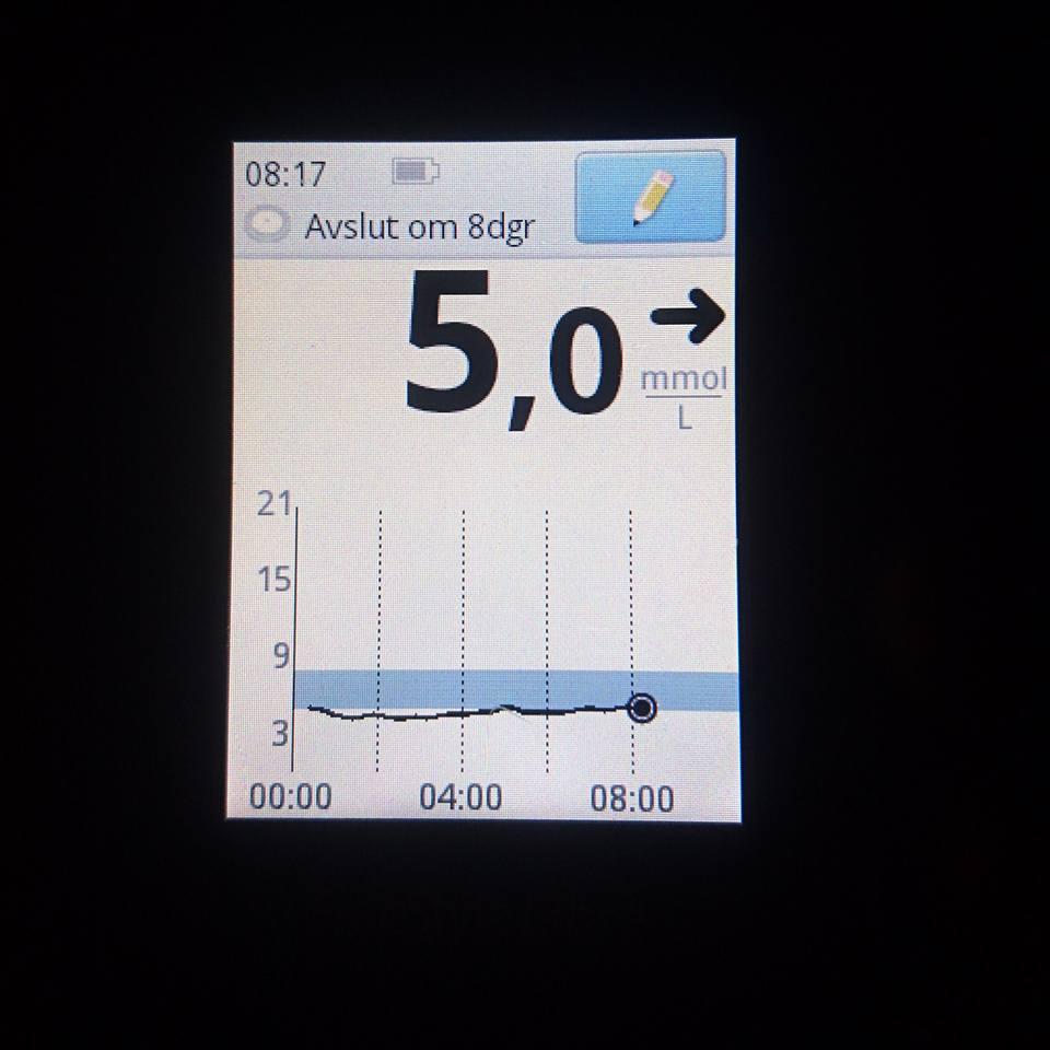 diabetes typ 1 kost